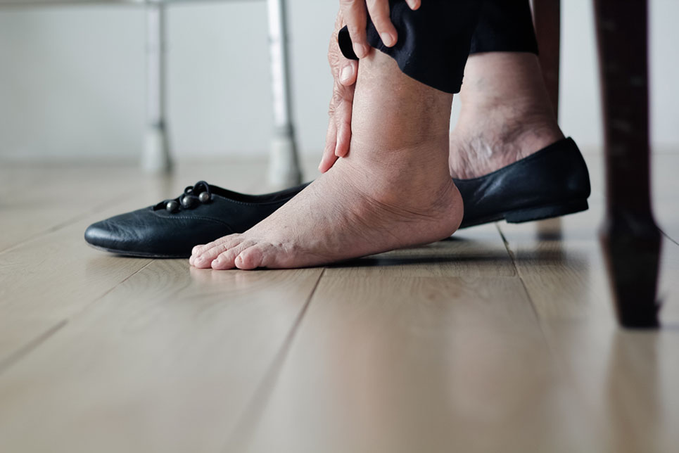 an elderly woman with swollen feet taking off her shoes